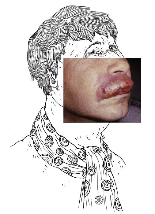 ... macrochéilite de Miescher et par le syndrome de Melkersson Rosenthal